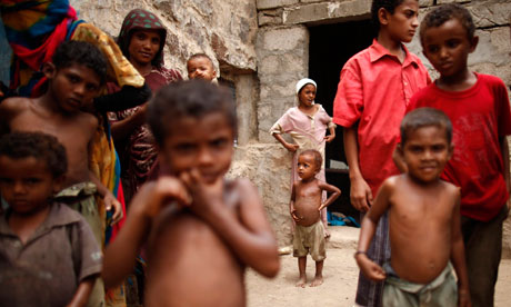 MDG : hungry people malnourished : One million Yemeni children face severe malnutrition, Yemen