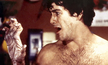 David Naughton in An American Werewolf in London (1981)