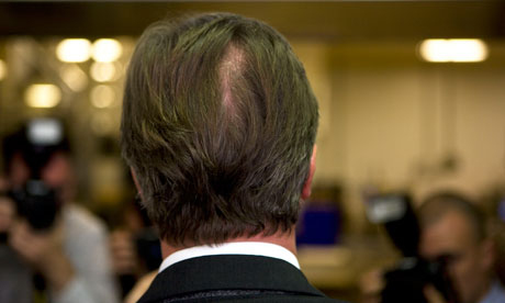 David Cameron's bald patch