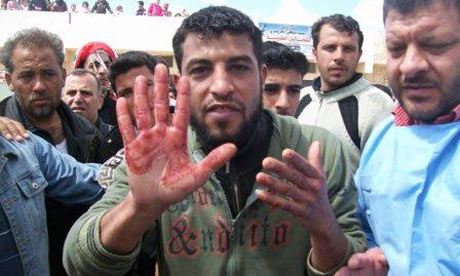 An anti-government protester displays bloody hands during a funeral procession in Douma. The image was taken on a mobile phone.