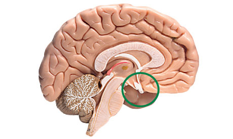 The pituitary gland (circled)