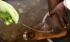 A guinea worm is extracted by a health worker from a child's foot in Savelugu, Ghana
