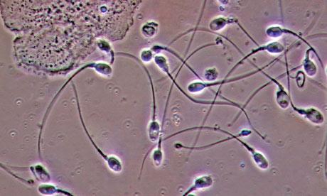 Sperm in urinanalysis