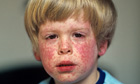 measles rash on face of infant patient