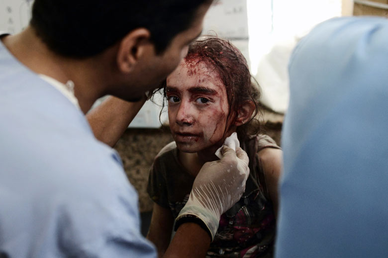 A Syrian girl receives treatment after she was wounded by regime force's helicopter