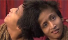 Conjoined twins from India