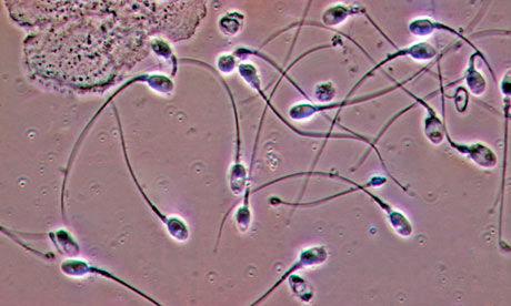 Microscope sperm under