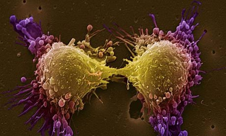 Small Cell Prostate Cancer: Treatment and coping tips