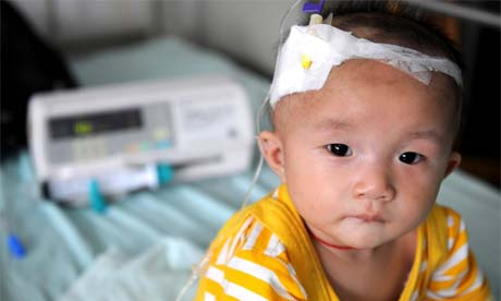 A baby who suffers from kidney stones after drinking tainted milk powder, Chengdu, China. September 22, 2008