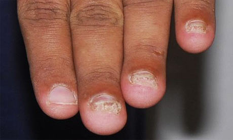 A photograph of Rangzieb Ahmed's hands taken in September 2007, one year after he said his fingernails were removed. Photograph: Greater Manchester police