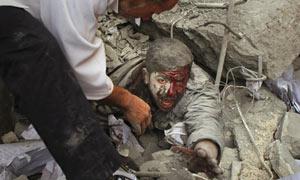Injured Palestinian prisoner in Gaza