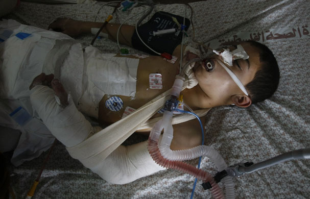 Gallery Gaza: A Palestinian boy lies in Gaza City s al-Shifa hospital