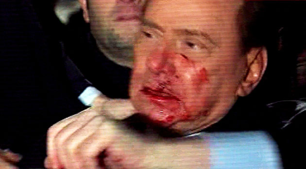 Berlusconi bleeds : Italian Prime Minister Silvio Berlusconi bleeds after an attack in Milan