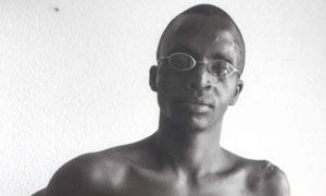 Révérien Rurangwa, who was maimed by Hutu attackers, still bears the scars