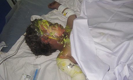 http://static.guim.co.uk/sys-images/Guardian/Pix/pictures/2009/5/6/1241596874377/An-injured-Afghan-child-a-001.jpg