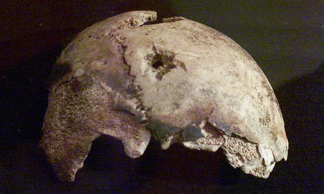 Fragment of Adolf Hitler's skull