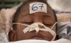 Jean Chandula, 3, is treated at the Jean Damien children's  hospital in Haiti.