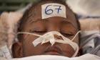 Jean Chandula, 3, is treated at the Jean Damien children's hospital in Haiti.