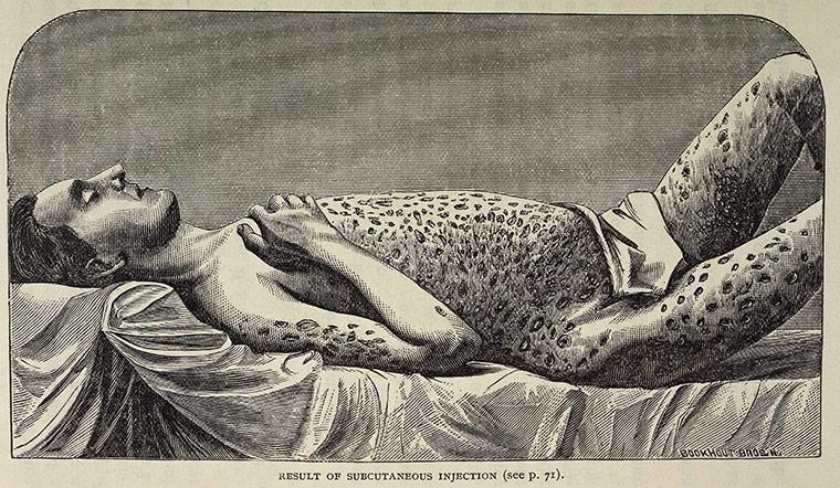 Рисунок, изображающий воздействие опиума