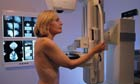 Woman Receiving Mammography Test