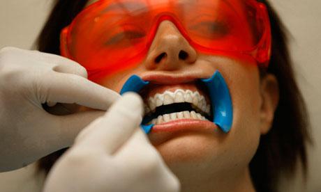 Teeth-whitening-006.jpg