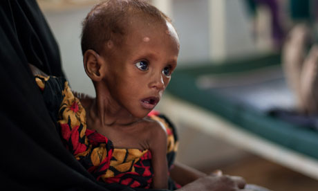 starving somali child
