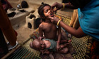A child is vaccinated against polio in the remote Indian village of Tilkeshwar