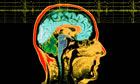 MRI scan and EEG