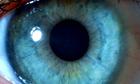 Iris of a human eye