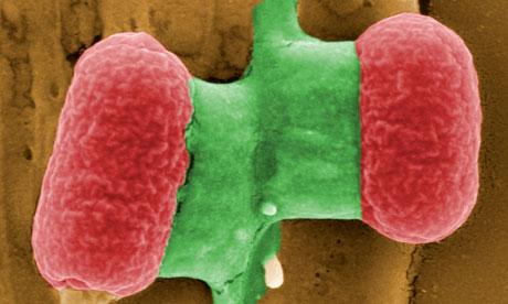 Unpublicised E coli outbreak leaves 250 ill and one dead E-coli-bacteria-under-an--008