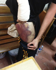 injuries fromth e Greek police