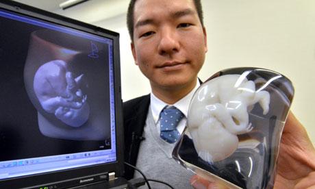 Foetus 3D model