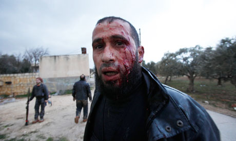 Syria, Homs, rebel injured