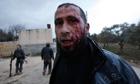 A Syrian rebel retreats for medical treatment in Idlib, Syria
