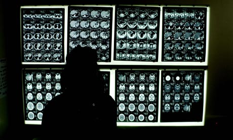 A substantial majority of Royal College of Radiologists members called for NHS reforms to be axed