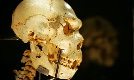 A skull from one of the bodies found in a pit in Spain