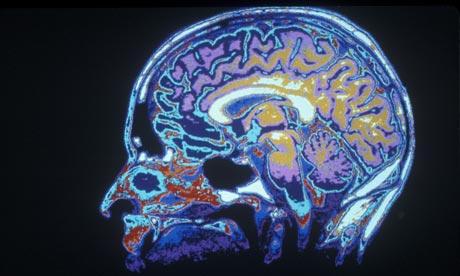 nhs-neglect-neurological