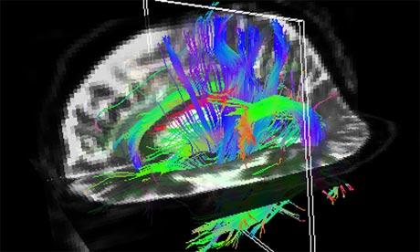 Una scansione del cervello chiamata imaging del tensore di diffusione (DTI)