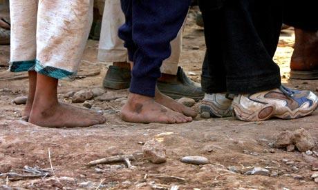 children's bare feet