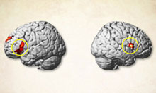 The regions of the brain to which TMS was administered