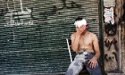 A Syrian man wounded by shelling sits on a chair outside a closed shop in the Al-Muasalat area in Aleppo.