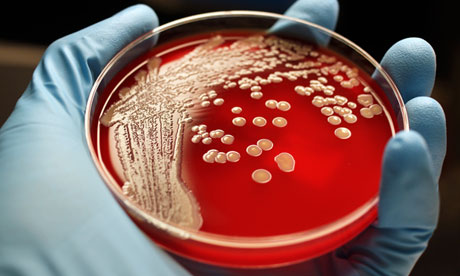 The hospital superbug MRSA