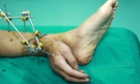 Man has severed hand attached to leg to keep it alive, Changsha, Hunan Province, China