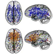 Men and women brains U.Penn study