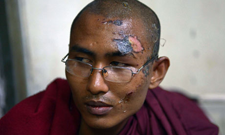 A Buddhist monk who was injured in the crackdown