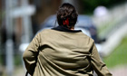 obesity crisis men women hospitalised