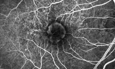 nhs could save 84m using cheaper drug to prevent blindness trial eye drug could save nhs 84m 460x276