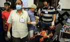 An injured supporter of Mohamed Morsi is treated at a field hospital.