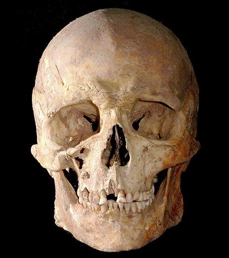 Skull of mesolithic hunter-gatherer