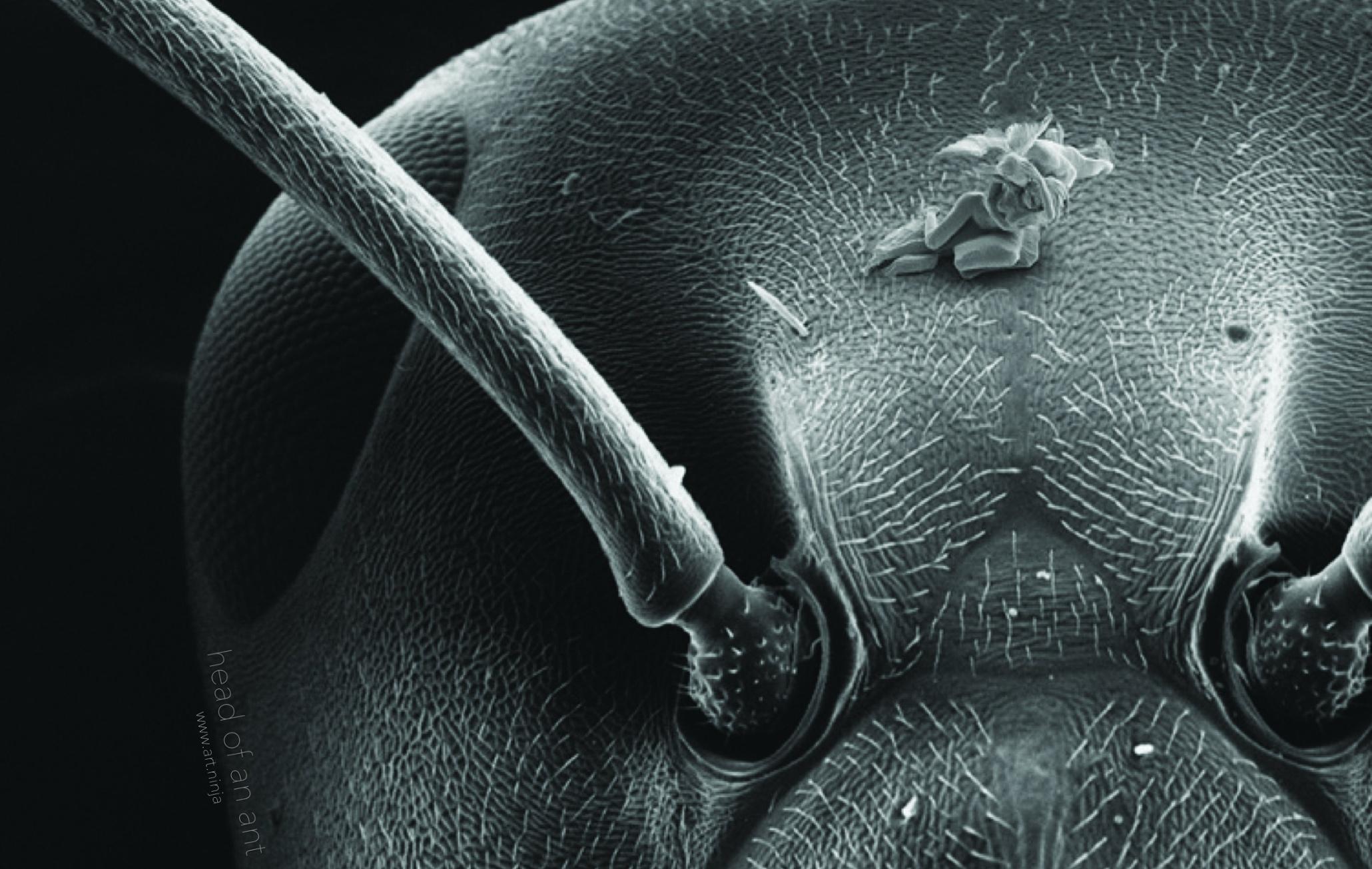Сперма фото под микроскопом 9 фотография